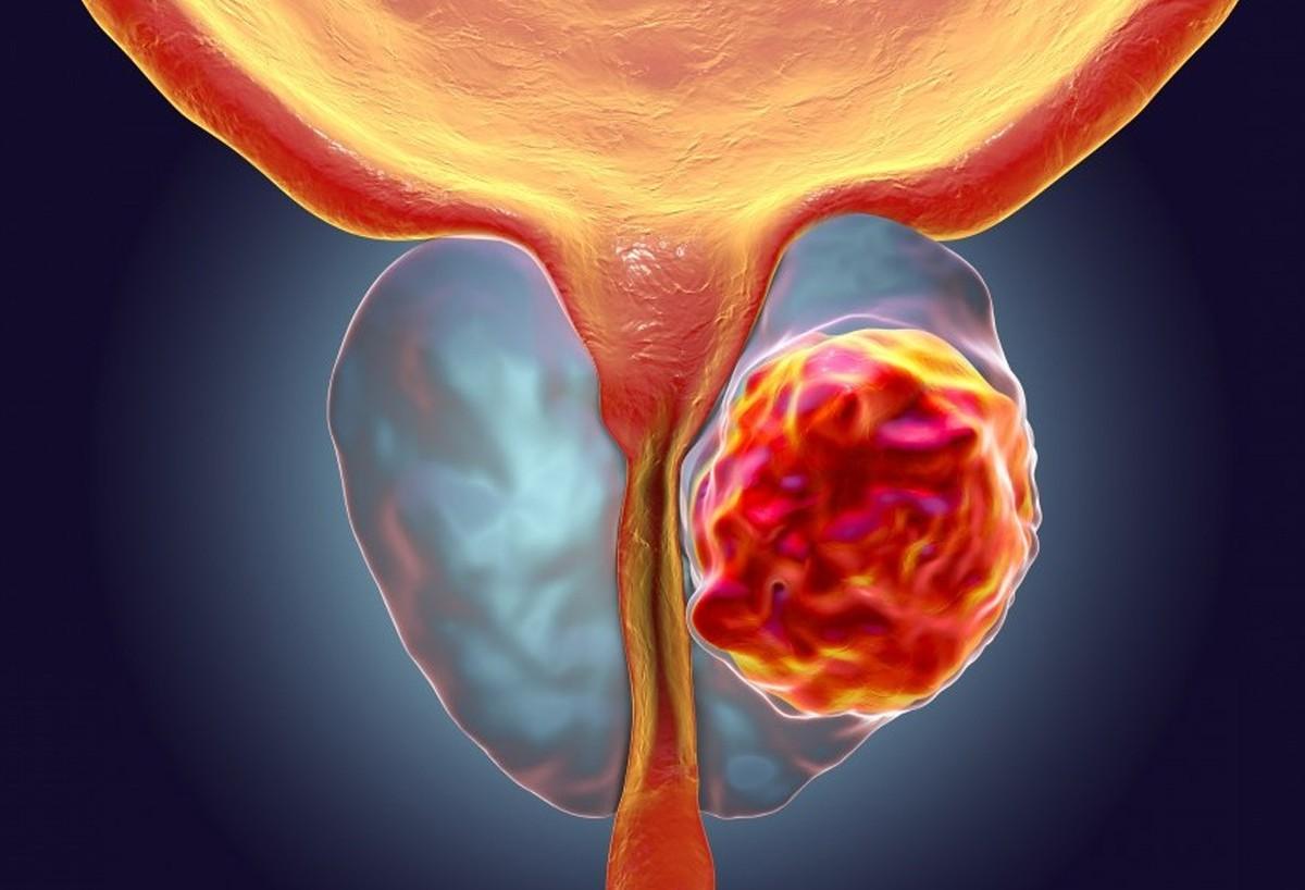 Простатит рак антибиотики от простатита у мужчин уколы